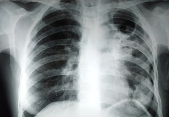 Timely treatment is necessary instead of hiding TB
